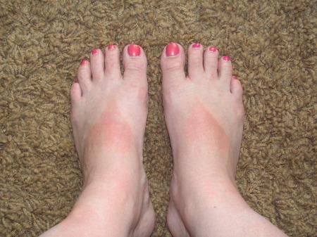 sunburned-feet-002